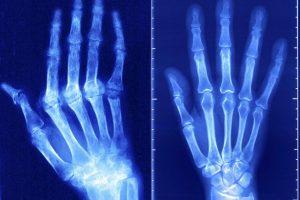 Признакаи ревматоидного артрита