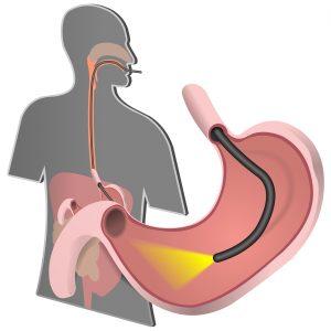 метод диагостики желудка
