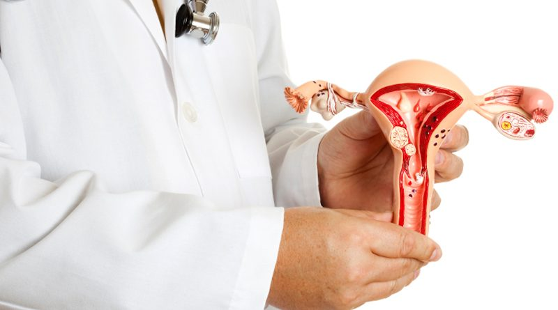 Что такое эндометриоз шейки матки