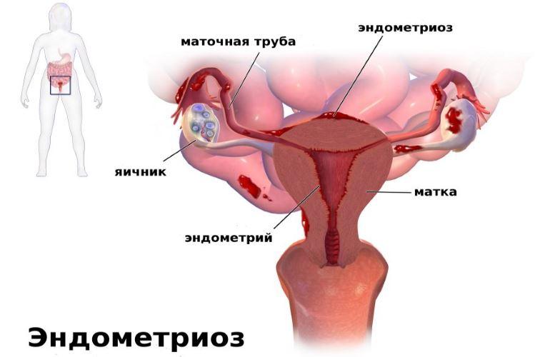 Виды эндометриоза
