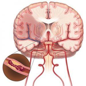 Как происходит ишемический инсульт