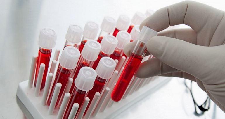 Коолличество протеина в крови