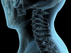 Синдромы при остеохондрозе шейного отдела