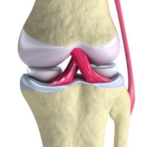 Информация об артрозе коленного сустава