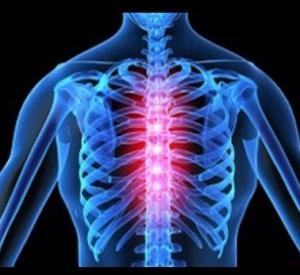 Особенности грудного остеохондроза