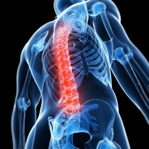 Противопоказания к ЛФК при шейном остеохондрозе