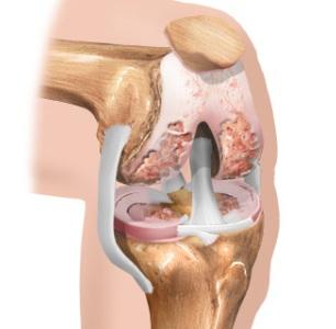 Причины и симптомы гонартроза