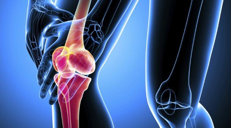 Эффективное лечение артроза 3й степени коленного сустава