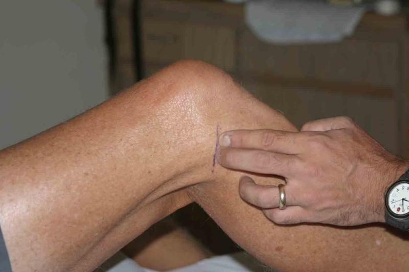 Артроз 3 степени коленного сустава лечение диета профилактика