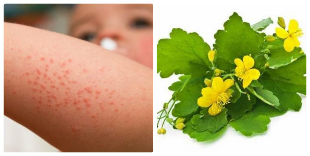 чистотел при аллергии у взрослых