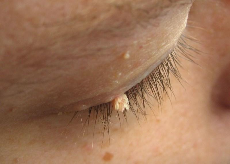 Бородавка у глаза
