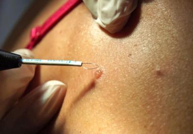 Как удаляются бородавки, радиоволновой метод и его преимущества