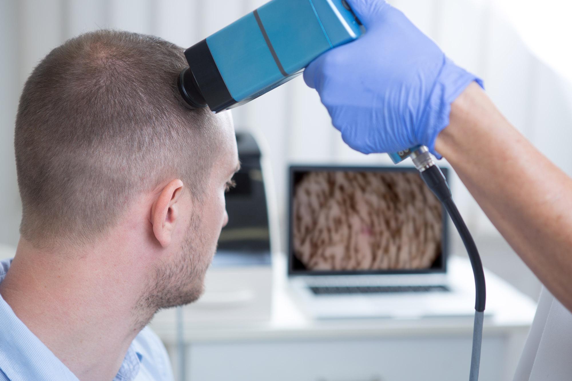 Если появилась перхоть, зуд и необычные корочки в волосяной части следует немедленно обратиться за медицинской помощью.