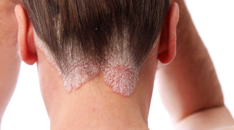 Стригущий лишай — грибковая инфекция кожи. Заболевание передается контактным способом, прикосновением к зараженному, использованием общих полотенец. Трихофития может быть поверхностной или глубокой.