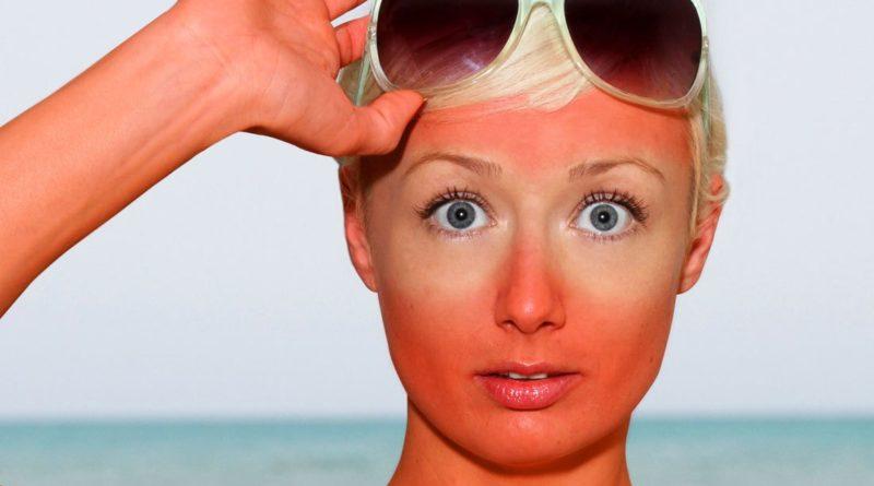 Получить солнечный ожог очень легко, если пренебрегать элементарными правилами пребывания на солнце.
