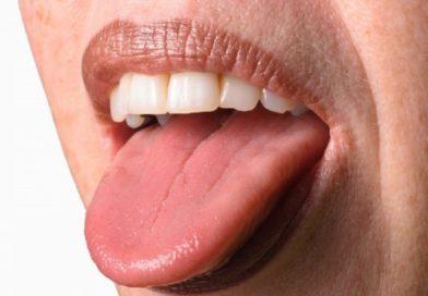 Причины появления бородавок на языке, методы лечения