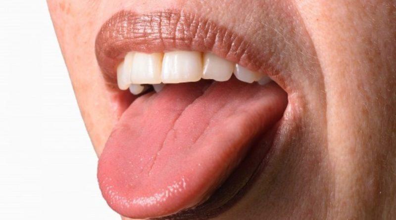 Бородавки на языке