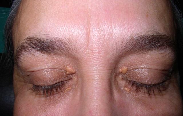 Бородавка в области глаз
