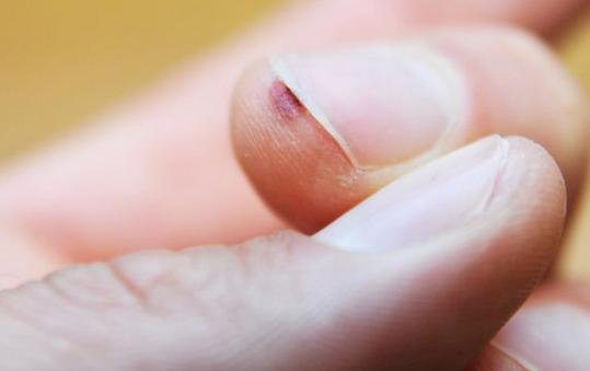 Бородавки возле ногтей