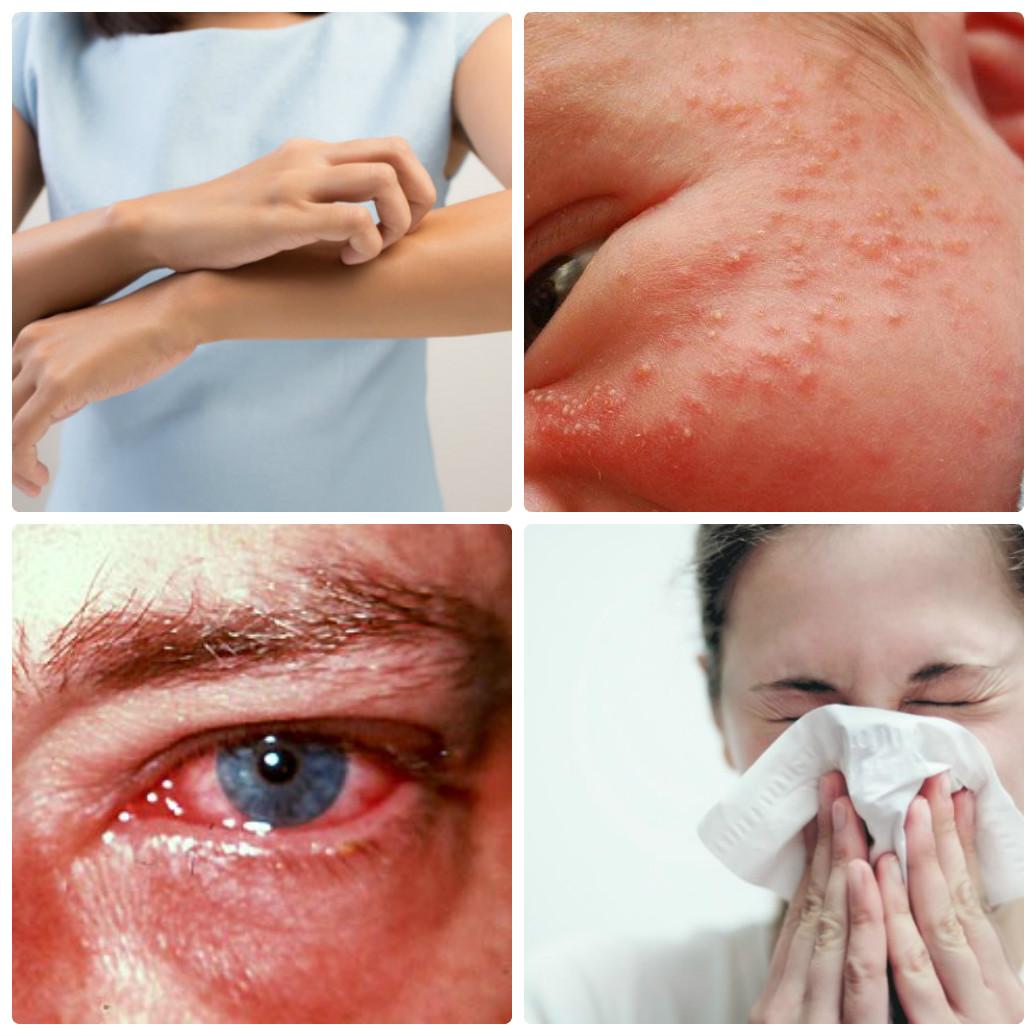 Как выражается аллергия