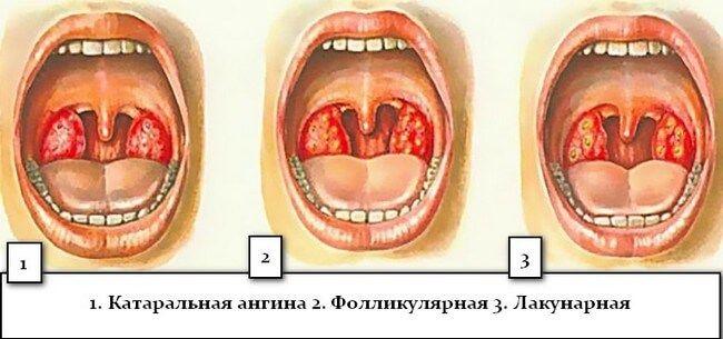 Особенности фолликулярной ангины