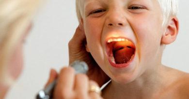 ангина у детей симптомы и лечение
