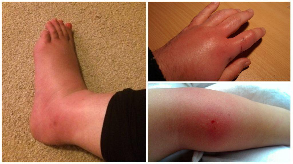 укус мошки в ногу