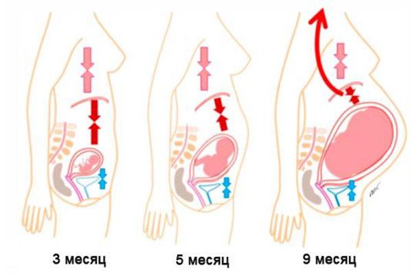 изжога при беременности во втором триместре