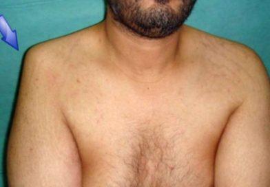 Вывих плечевого сустава: симптомы и лечение